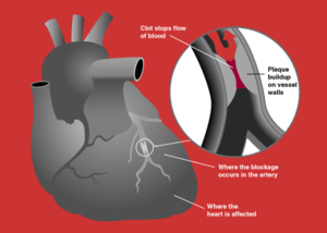 A myocardial infarction occurs when an  slowly builds up in the inner lining of a  and then suddenly ruptures, totally occluding the artery and preventing blood flow downstream.